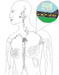 lymphatic-system-for-alt-breast-cancer-treatments