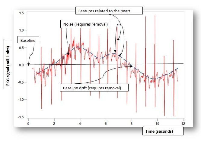 EKG time series plot