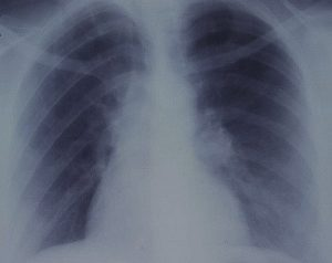 xray tumor
